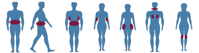 fedtdepoter i kroppen